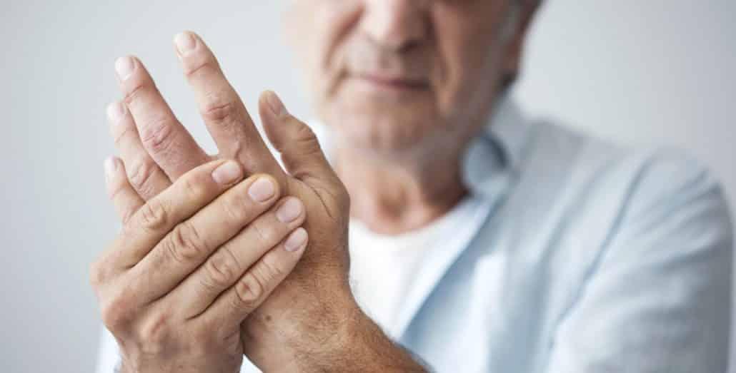 CBD kann bei Arthritis helfen